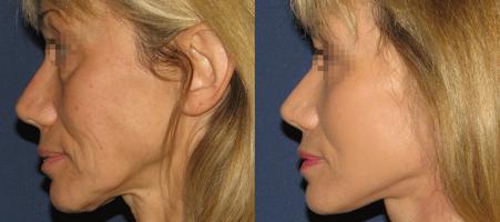 Charges faciales avant et après